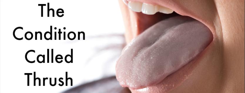 The Condition Called Thrush- Dentist Edmond